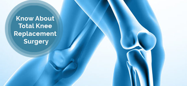 All You Should Know About Total Knee Replacement Surgery