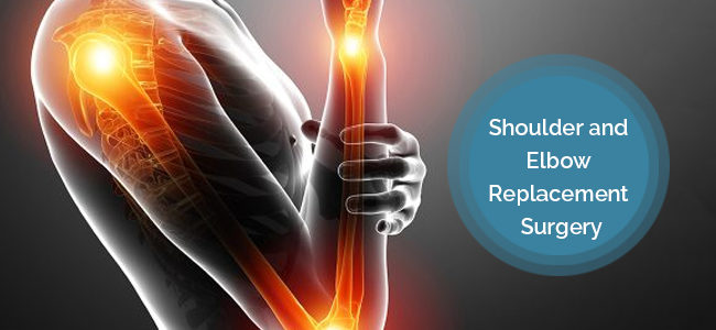 Shoulder And Elbow Replacement Surgery: Need, Procedure And Precautions