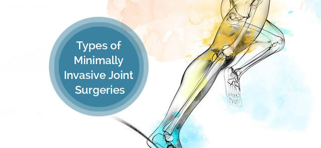Types Of Minimally Invasive Joint Replacement Surgeries