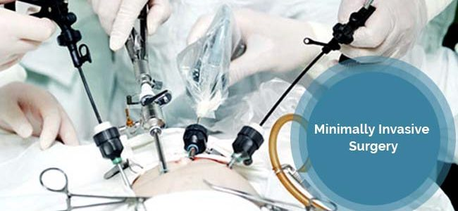 Minimally Invasive Surgery: A Breakthrough In The Medical World