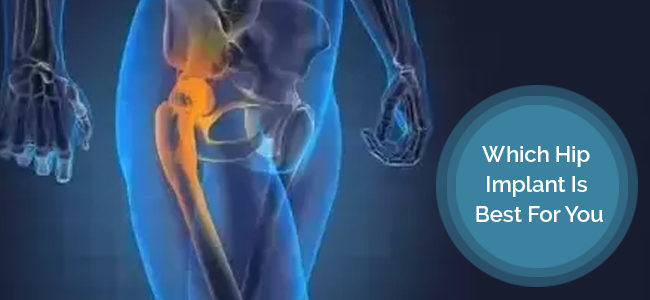 Which Hip Implant Is Best For You?