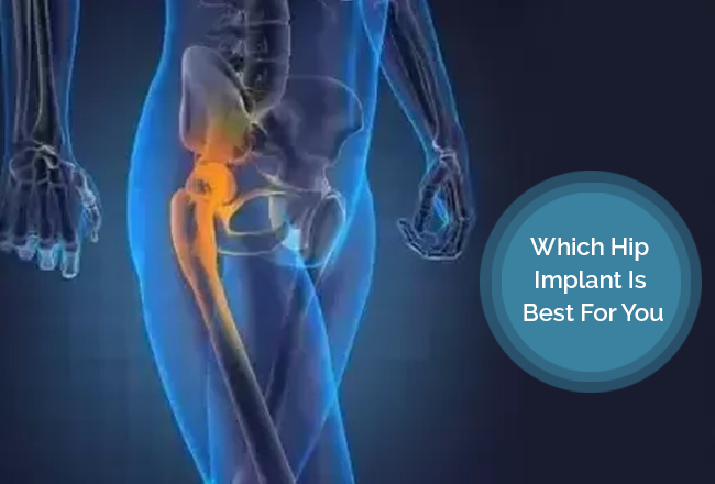 Which Hip Implant Is Best For You