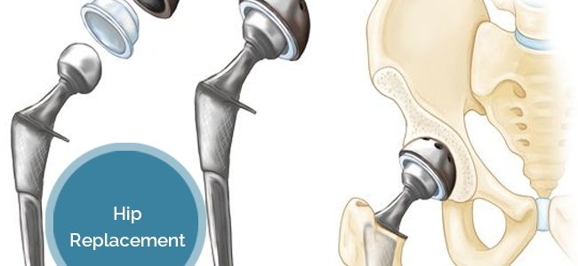 Hip Replacement: What Leads To It And What Follows?