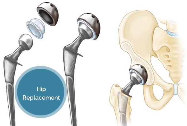 Hip Replacement What Leads To It And What Follows - Dr. Vivek Mittal