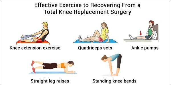 Total Knee Replacement Surgery-Effective Exercise to Recovering