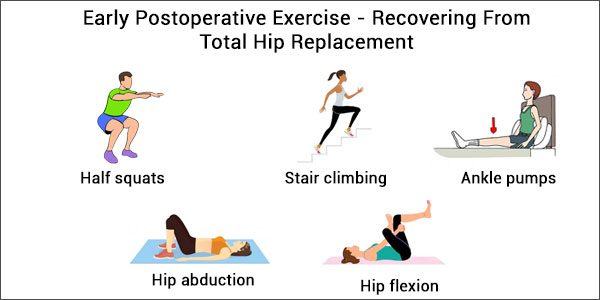 Total Hip Replacement Surgery – Early Postoperative Exercise To Recovering